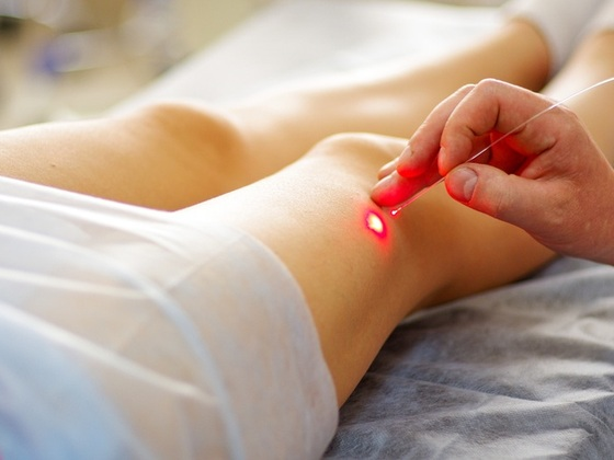 tratamento-de-varizes-na-perna-com-laser-capifrutta-shutterstock-0000000000003AEE