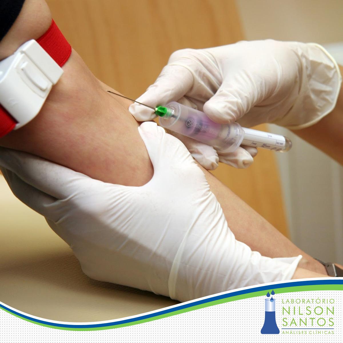 biopsia cancer de pele - Lab Nilson Santos